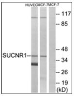AP31872PU-N - Succinate receptor 1 / GPR91