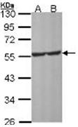 AP31913PU-N - Serotonin receptor 1A (HTR1A)