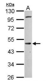 AP31915PU-N - Cannabinoid receptor 1