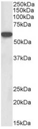 AP31924PU-N - LCK