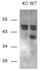 AP31937PU-N - Calcipressin-1
