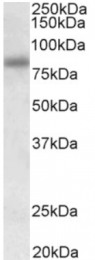 AP31940PU-N - SDCCAG8