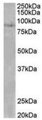 AP31953PU-N - SETDB2 / CLLD8