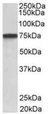AP31954PU-N - Granulin-3