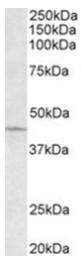 AP31955PU-N - ARPC1A / SOP2L