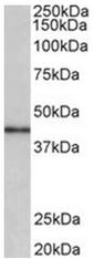 AP31958PU-N - CCNDBP1