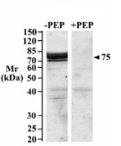 AP31962PU-N - SGLT1 / SLC5A1