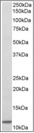 AP31990PU-N - Beta-2-microglobulin