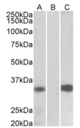 AP31991PU-N - Calsenilin