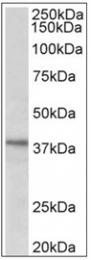 AP31994PU-N - C12orf29