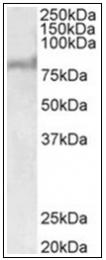 AP32001PU-N - ABCD2 / ALDR