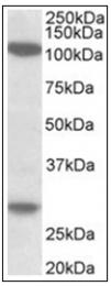 AP32009PU-N - Ubinuclein 1/2 (UBN1/UBN2)