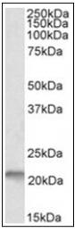 AP32016PU-N - NSG1