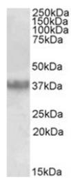 AP32025PU-N - Apolipoprotein J / Apo J