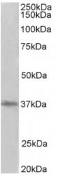 AP32026PU-N - PCNA