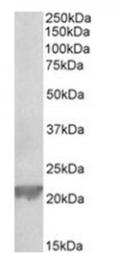 AP32027PU-N - Glutathione peroxidase 1 / GPX1