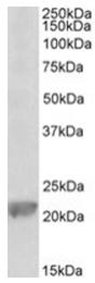 AP32028PU-N - Glutathione peroxidase 1 / GPX1