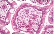 AP32044PU-N - HGF receptor