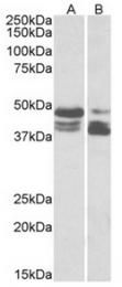 AP32072PU-N - TIP47 / M6PRBP1