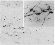 AP32076PU-N - Agouti-related protein / AGRP