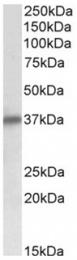 AP32139PU-N - Delta-sarcoglycan