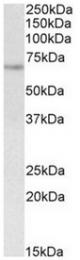 AP32140PU-N - UBASH3A / STS2