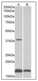 AP32143PU-N - CD57 / B3GAT1