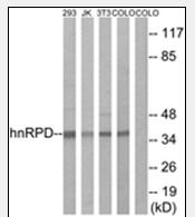 AP32215PU-N - hnRNP-D0 / HNRNPD