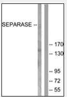 AP32216PU-N - Separin / ESPL1