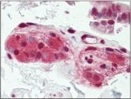 AP32223PU-N - CDC37