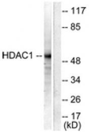 AP32235PU-N - HDAC1