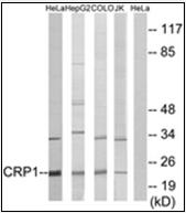 AP32258PU-N - CSRP1
