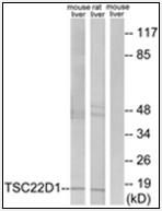 AP32264PU-N - TSC22D1
