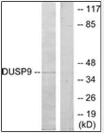 AP32268PU-N - DUSP9 / MKP4
