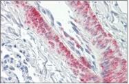 AP32283PU-N - CDC42BPB