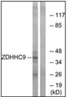 AP32315PU-N - ZDHHC9