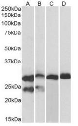 AP32349PU-N - Cardiac Troponin I