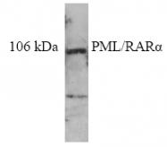 AP32356PU-N - PML / RNF71