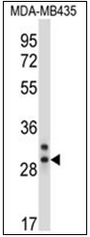 AP32364PU-N - Elastase-2A