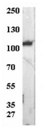 AP32386PU-N - ATP1A3