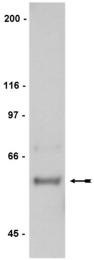 AP32453PU-N - HCK