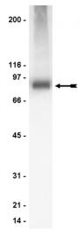 AP32454PU-N - PRKCA