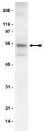 AP32458PU-N - RPS6KB2 / STK14B