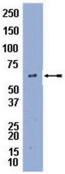 AP32494PU-N - Perilipin-1