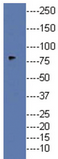 AP32521PU-N - Doublecortin-like kinase 1