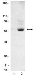 AP32524PU-N - RPS6KB2 / STK14B