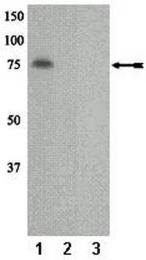 AP32532PU-N - PRKCH