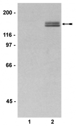 AP32544PU-N - TNK2 / ACK1