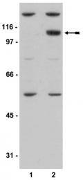 AP32582PU-N - PRKD2 / PKD2