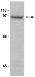 AP32583SU-N - MAGE-D1